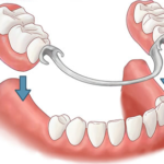 Dental Crowns & Bridges Decatur Georgia