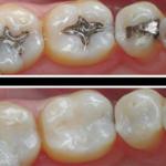 Dental Fillings Decatur Georgia Fix Cavities & Tooth Decay