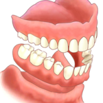 Dentures Decatur Georgia Full Partial New Immediate