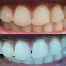 Teeth Whitening Decatur Georgia