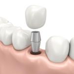 Dental Implants Decatur Georgia DeKalb County