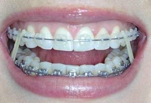 Orthodontics & Braces Decatur Georgia