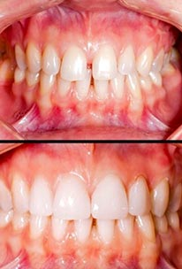 full dentures near me